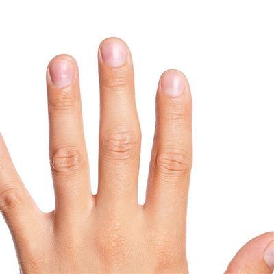 指甲上有竖纹是怎么回事